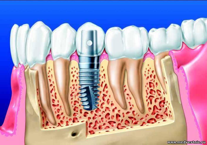Осложнения после установки зубного импланта