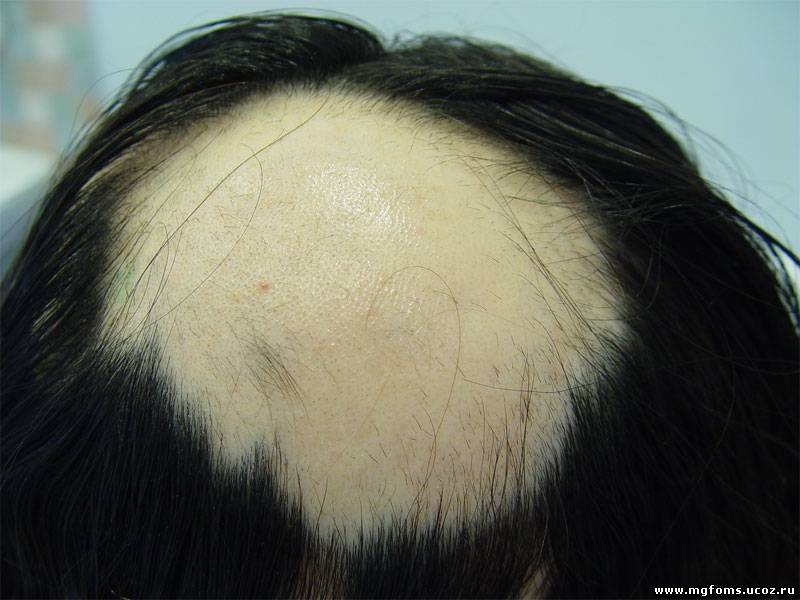 Длинные волосы как их отрастить